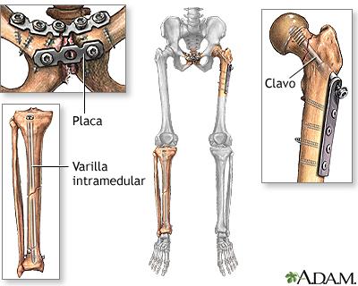El Pega Huesos | Todo lo que requiere para acelerar su recuperacion ...