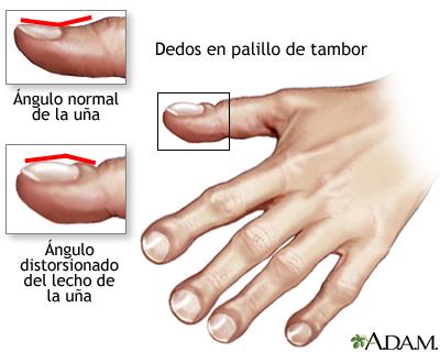 Dedos malformados