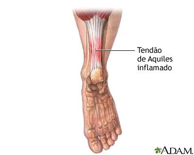 Tendón de Aquiles inflamado