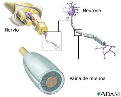 Estructura de la neurona con el axón recubierto de la vaina de mielina. Fuente Medline Plus