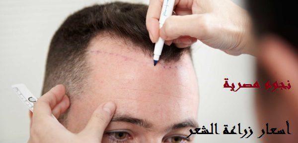 أسعار زراعة الشعر