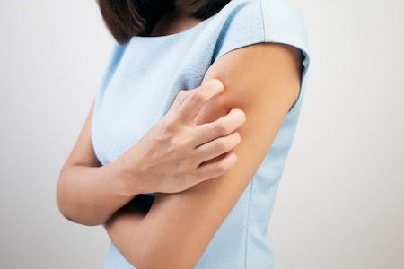 Exemple d'eczema atopique