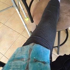 Soft Chairs Spread The Hips Target Club Chair Covers Labrum And Fai Hip Arthroscopy Corrective Surgery