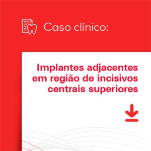 Caso clínico – Implantes adjacentes