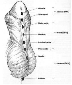 hypospadias image 2