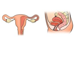 problemi endometriosi
