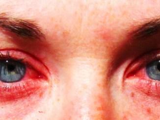 Eye Allergies MarijuanaWellness