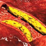 كيف تخرج الدهون بعد حرقها من الجسم