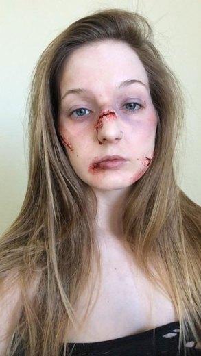 Elsa-Rhae-heridas-maquilladas