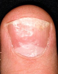 What Fingernail Abnormalities Say About Your Health  Non