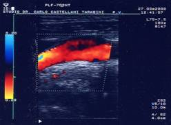 visita-angiologica-ecodoppler-castellani-tarabini-18