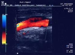 ecocolordoppler visita angiologica modena