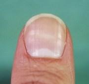 nail ridges lines#