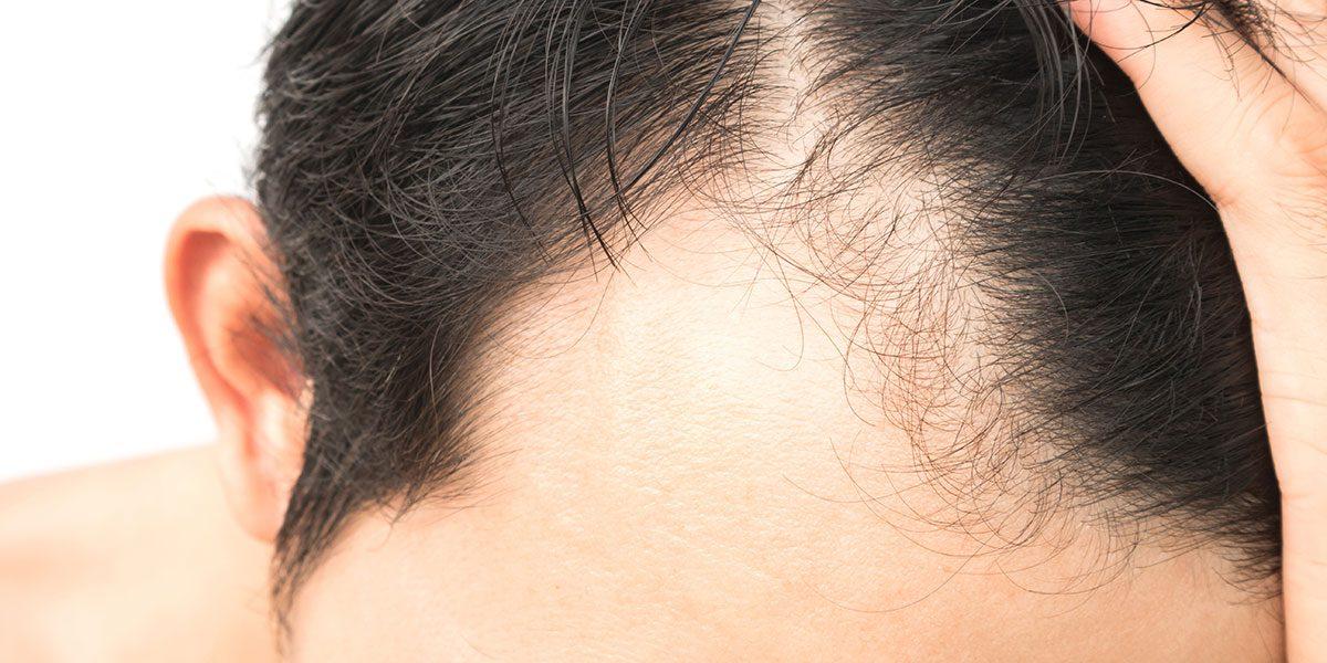 Hair Loss Alopecia Areata Treatment Norris Dermatology