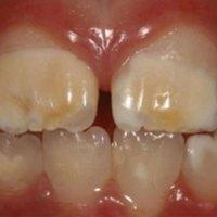 El HIM es un problema cada vez más frecuente en la consulta de odontología infantil