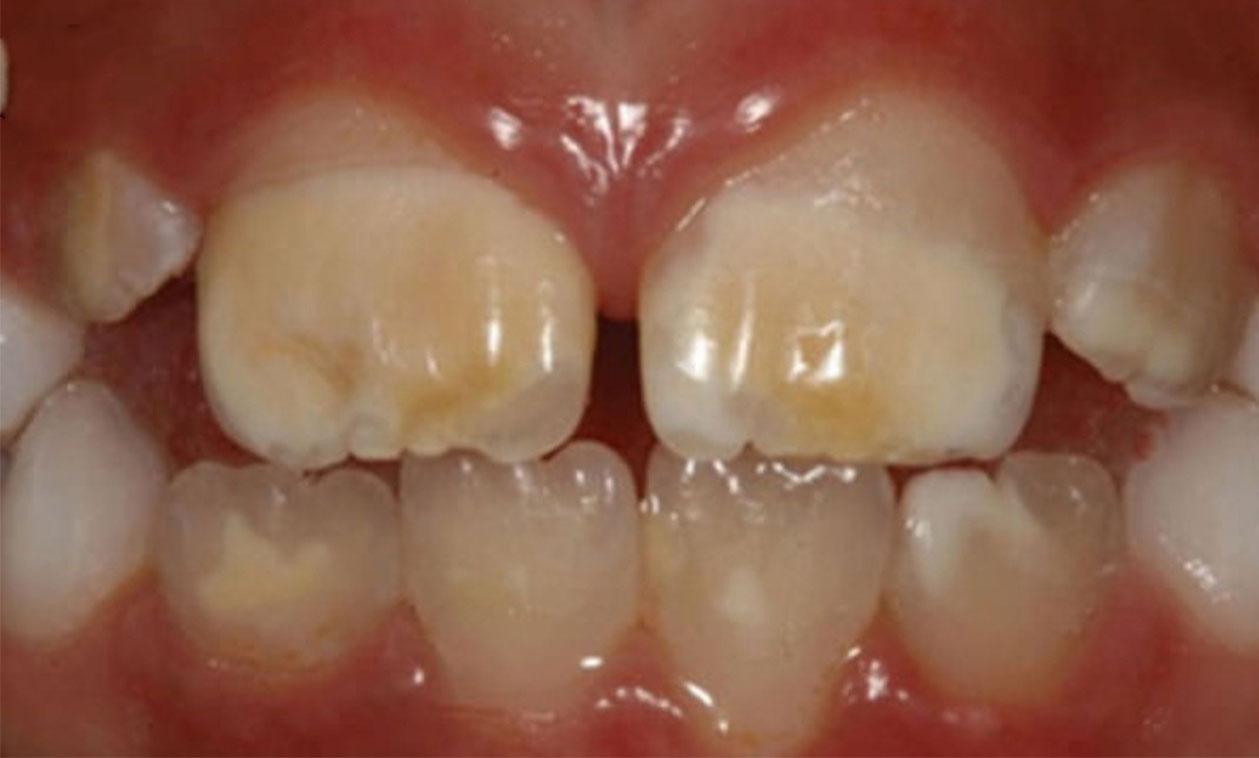 Manchas marrones en los dientes por brackets