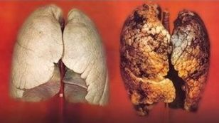 Stop Smoking - Lung Comparison