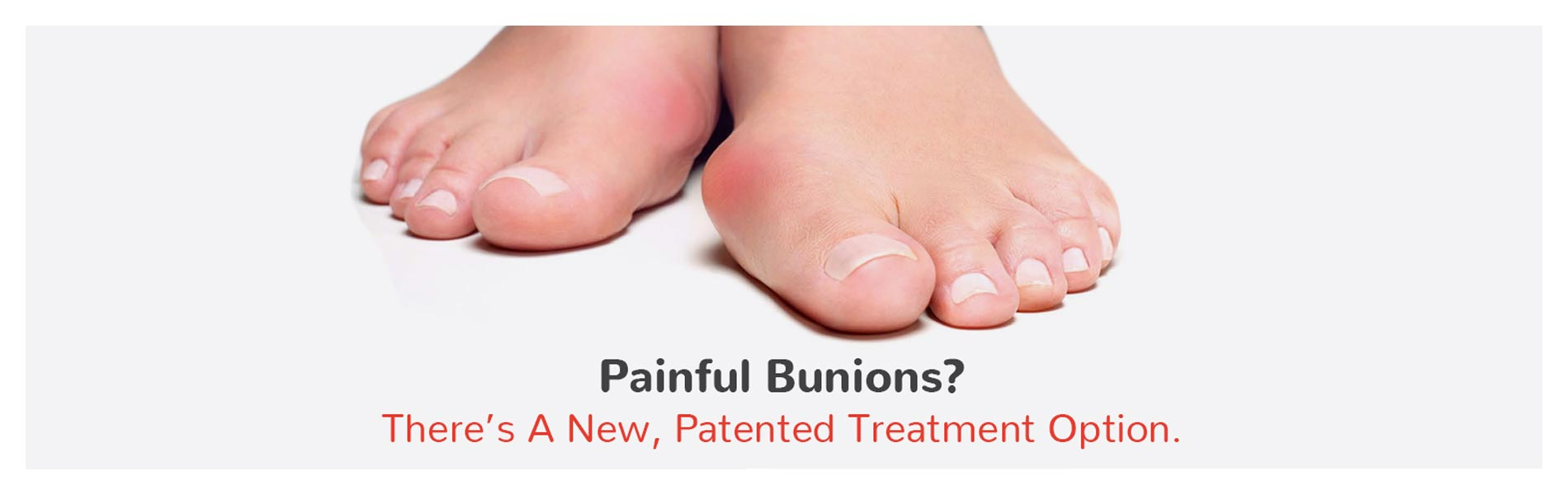 Painful Bunions? There's a new patented treatment option.