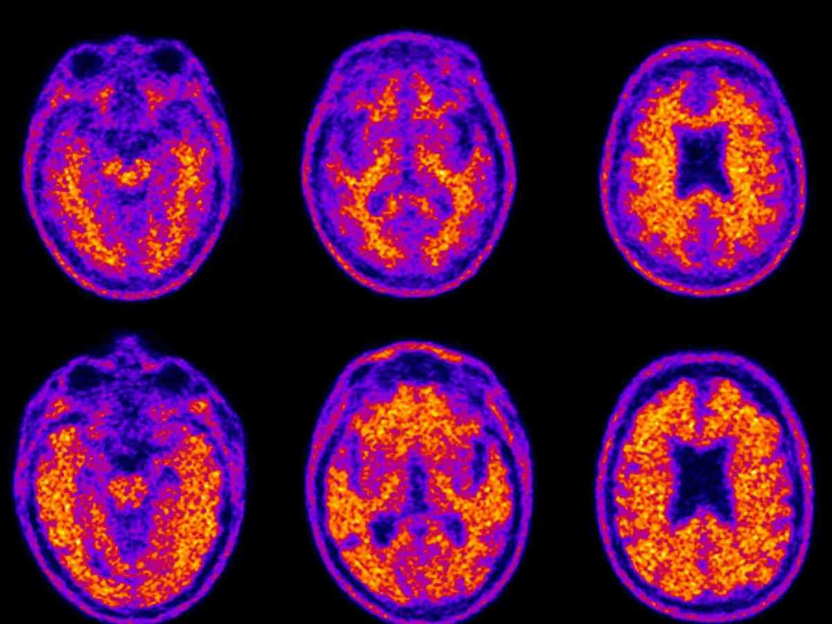 shows brightly colored brain scans of patients with dementia and one without dementia