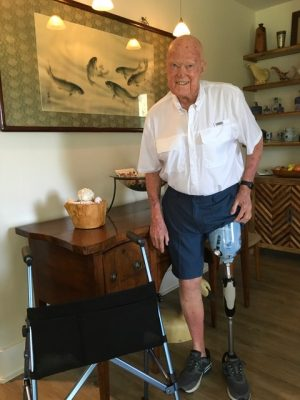shows a man who has an artifical leg. He lost the leg as a result of a vibrio infection.