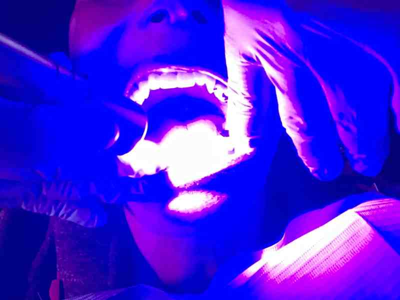 A dental professional like a dental hygienist or dentist puts a flashlight into someone's mouth. It's a proxy for dentists and oral health and oral cancer screenings because of HPV