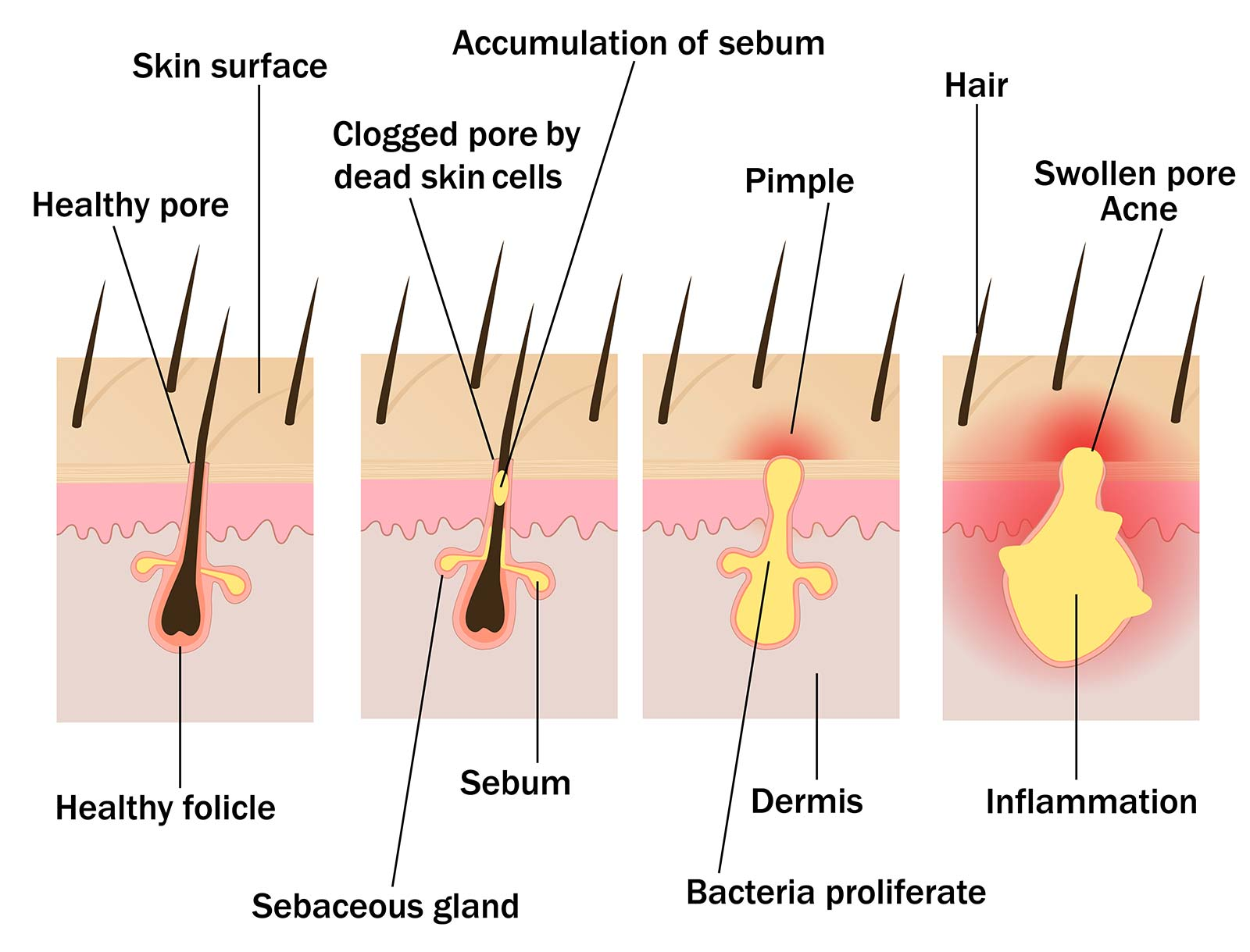 hight resolution of how acne forms in the follicle