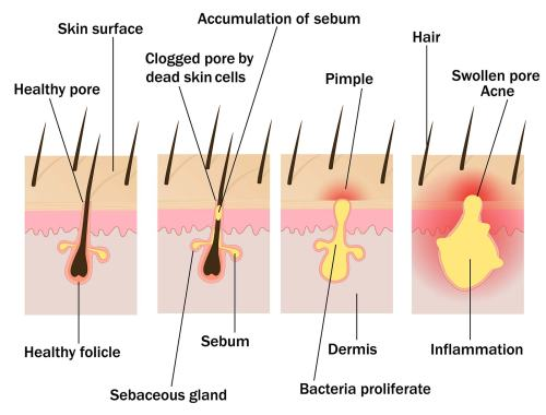 small resolution of how acne forms in the follicle