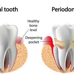 gum disease treatment in toronto ontario [ 2000 x 1034 Pixel ]