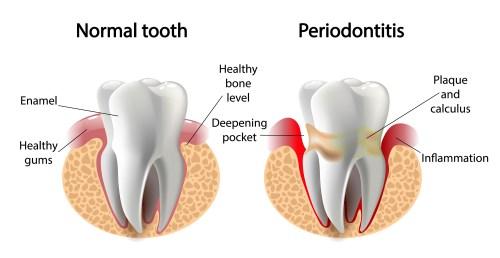 small resolution of gum disease treatment in toronto ontario