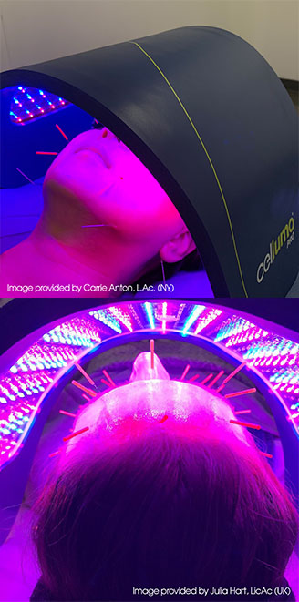 Celluma® LED Light Therapy for Anti-Aging. Acne & Pain - North Vancouver Acupuncture