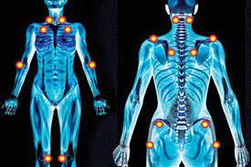 فيبروميالجيا الألم العضلي الليفي .. السبب مجهول والعلاج دوائي ونفسي
