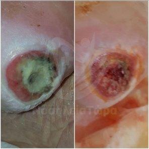 Θεραπεία Κατάκλισης Αριστερής Πτέρνας (3)
