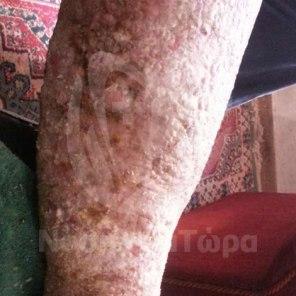 Θεραπεία Μολυσμένων Κάτω Άκρων (6)