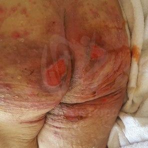 Θεραπεία Κατακλίσεων Γλουτών (2)