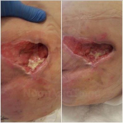 Θεραπεία Κατάκλισης Κόκκυγα (3)