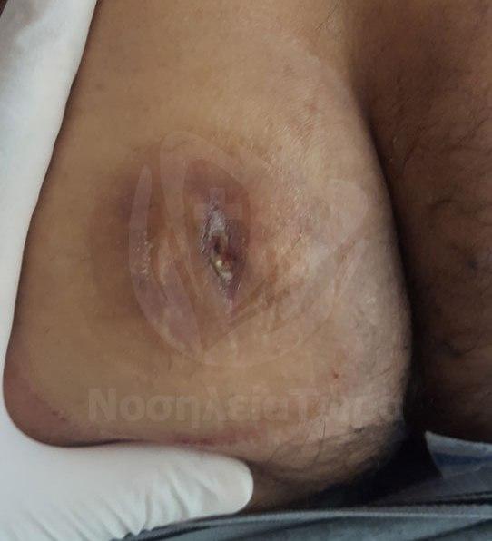 Θεραπεία Κύστης Αριστερού Γλουτού (2)