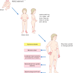 Pattern_of_atopic_eczema_varies_with_age