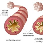 asthmatic airway