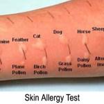 skin-testing-allergies