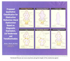 Periductal Fibrosis MGD