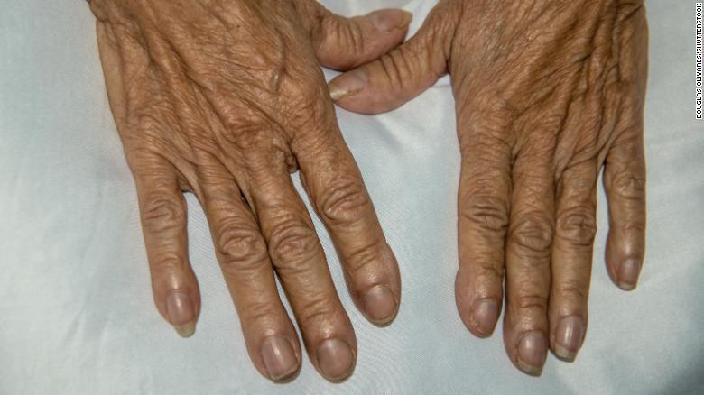uñas concavas