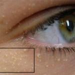 Eu tinha essas colisões brancas ao redor dos olhos (Milias) e foi só aplicar esta receita natural que desapareceu em dois dias!