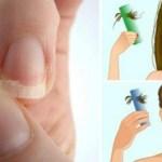 Se você tem as unhas frágeis finas, perda de cabelo ou insônia, comece a consumir estes