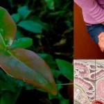 Como tratar uma infecção urinária o mais rápido possível com a folha de pitanga