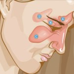 Pare de sofrer com asma, rinite e sinusite – experimente estes poderosos remédios caseiros!