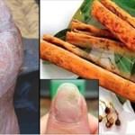 Use canela desta forma e nenhum fungo nas unhas, pele e cabelo irá resistir