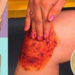 Trate dor do joelho, ossos e articulações com essa poderosa receita caseira