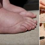 7 remédios caseiros para reduzir a retenção de líquidos