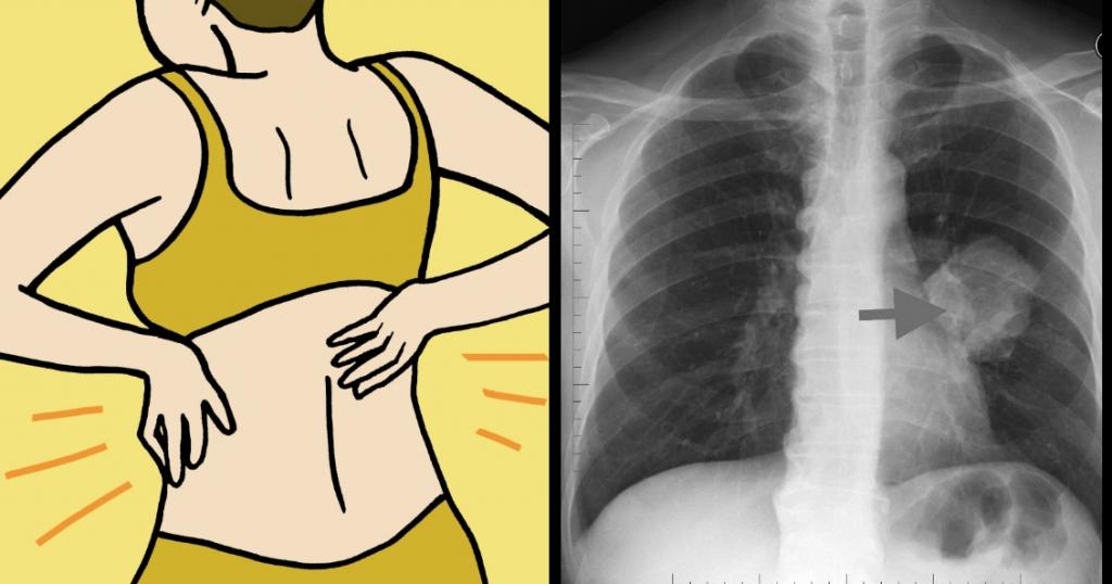 8 Sinais de câncer no pulmão que toda mulher precisa saber