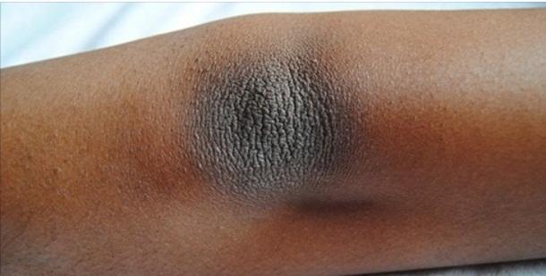 Como eliminar manchas escuras que aparecem nos cotovelos e joelhos